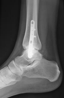 fracture malléole externe gauche