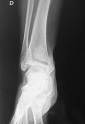 choisir l'original prix bas couleur rapide Docteur Nicolas CHANZY - chirurgie orthopédique et ...