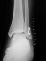 rééducation cheville fracture malléole externe